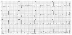 Routine Ecg Showing Sinus Rhythm With Markedly Prolonged
