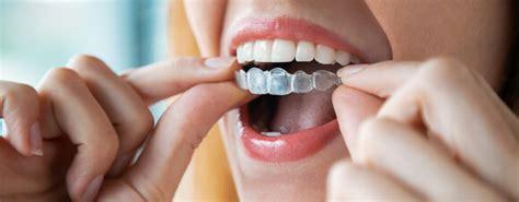 dr smile kosten erfahrungen und alternative zahnspangen