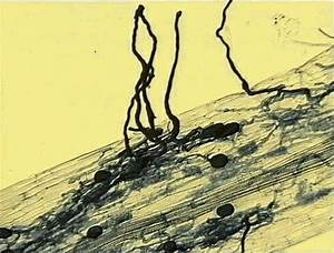Figure 1. Arbuscular mycorrhiza in clover root, showing ...