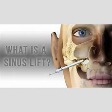 What Is A Sinus Lift? Youtube