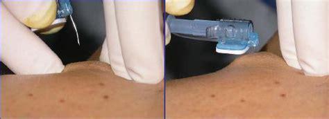 pose de chambre implantable vidéo 28 images pose du