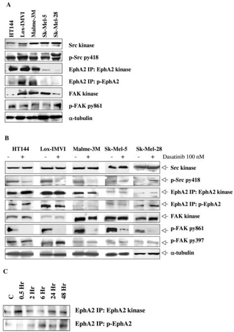 Western blotting for Src kinase, phospho-Src kinase py