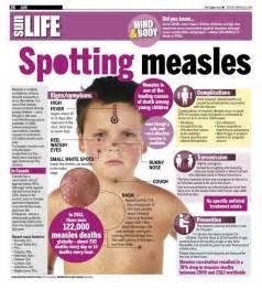 Measles Deaths Before Vaccine