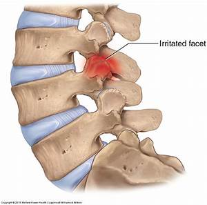 Facet Syndrome Of The Lumbar Spine