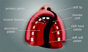 Cleft Palate Diagram Secondary Palate