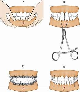 Accuracy And Outcome Of Mandibular Fracture Reduction