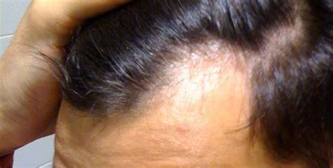 how long did your finasteride propecia shed last