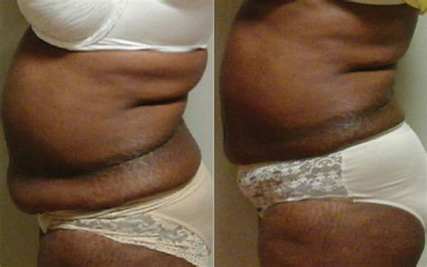 contour light body sculpting before and after laser liposuction before after photos lightrx face