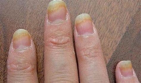 Какой праймер лучше кислотный или безкислотный и почему? . Красивые ногти. Маникюр. DivaNail . ВКонтакте
