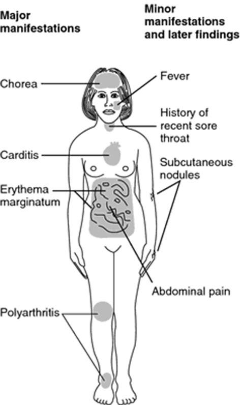 rheumatic definition  rheumatic  medical dictionary