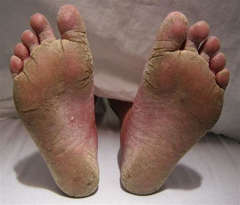 Natural Home Remedies Athletes Foot Symptoms And Treatment