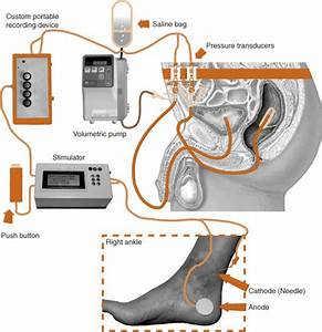 Acute Urodynamic Effects Of Posterior Tibial Nerve