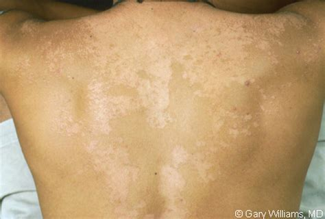 Pityriasis Versicolor Causes Symptoms Treatment