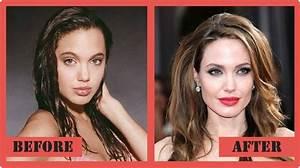 Angelina Jolie Celebrity Plastic Surgery  Celebrity Surgery  Pinterest  Celebrity plastic