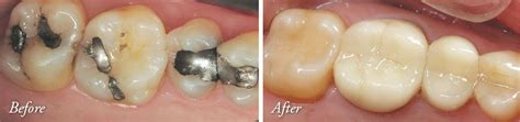 Cosmetic Dentistry In Lake Jackson Tx Dr Gotcher