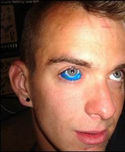 What's the Deal with Eyeball Tattooing? Janeens Charms