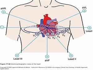 Coronary Arteries  U0026 12