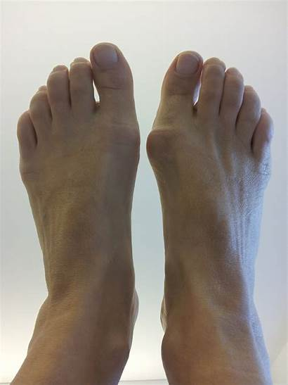 Hammer Bunion Surgery Foot Toe Toes Center
