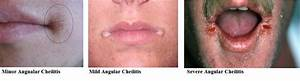 What is Angular cheilitis? Symptoms, Types, Causes ...