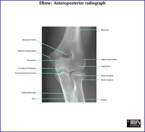 duke anatomy lab  extensor surface   forearm