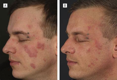 Lupus Erythematosus Tumidus