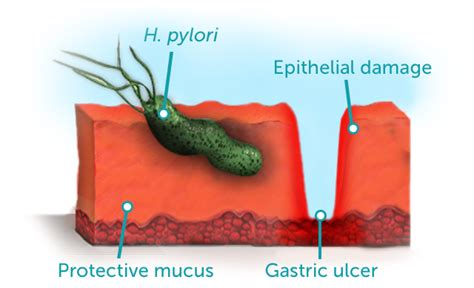 bactérie helicobacter pylori symptomes stomach spasm causes and solutions safe symptoms