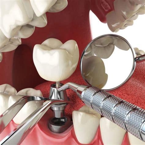 Zobu protezēšana   zobu kroņi   protezēšana