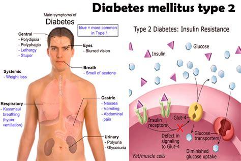 In Diabetes Mellitus Diabetes Mellitus Med Easy