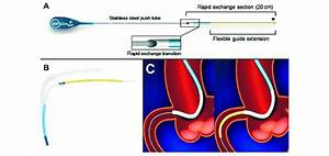 Schematic Presentation Of The Guideliner Catheter  Note