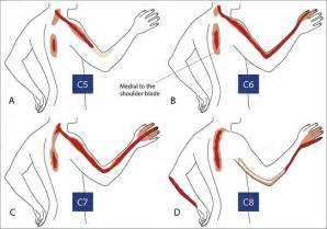 cervical radiculopathy - Physiotherapy - Pinterest Cervical Radiculopathy
