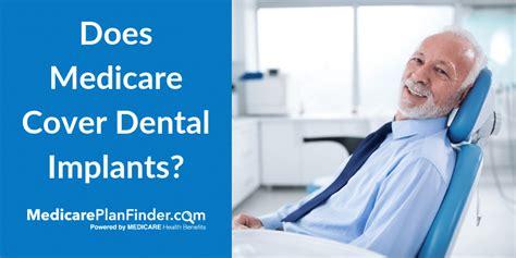 medicare cover dental implants medicare plan finder