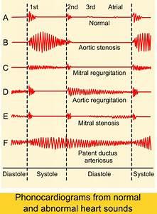 Systolic Heart Murmur