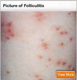 Folliculitis Treatment, Causes, Home Remedies & Symptoms