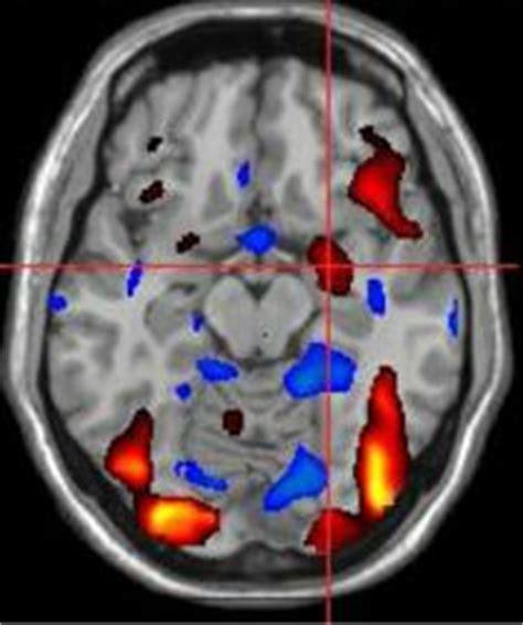 brain study reveals current understandings