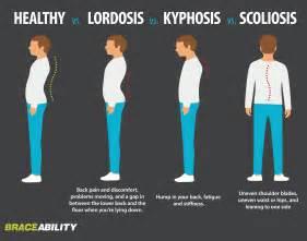 Normal Spine vs Scoliosis Kyphosis Lordosis