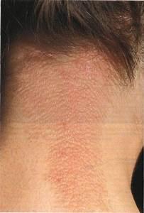 От чего возникает псориаз и как его лечить