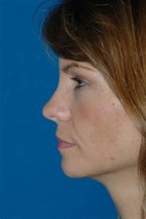 surgical rhinoplasty  surgical nose job