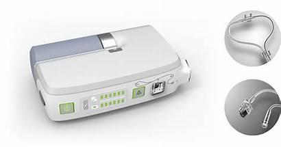 Delivery Pulmonary Hypertension System Device Pah Drug