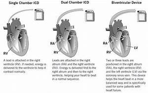Single chamber versus dual chamber pacing for high grade ...