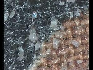 house dust mites - YouTube