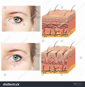 Skin Anatomy Diagram Younger Older Skincomparation Stock