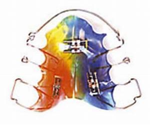 Waffeleisen Herausnehmbare Platten : lose zahnspangen kinder kieferorthop die hannover dr jan v raiman kollegen ~ Orissabook.com Haus und Dekorationen