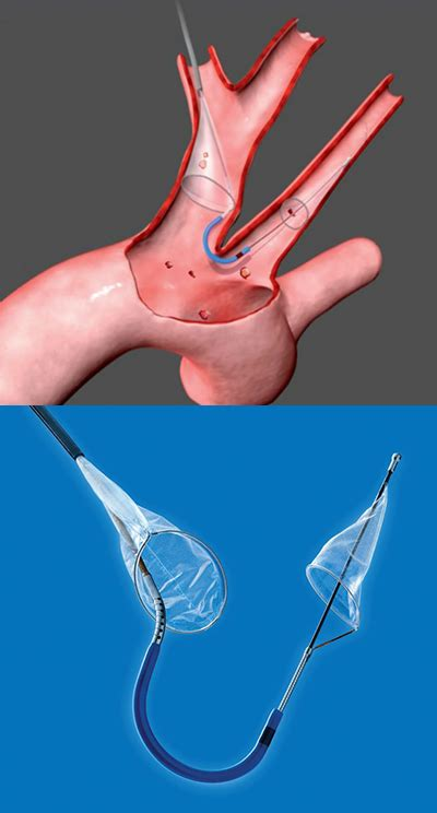 tavr branches   refinements broader indications