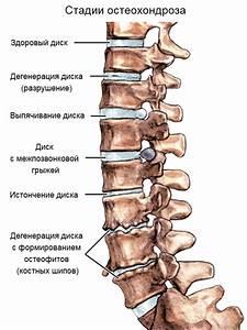 Остеохондроз шейного отдела высокое давление лечение
