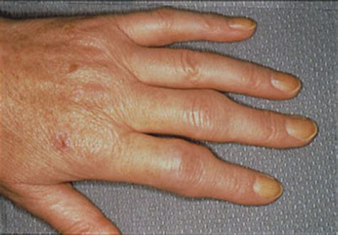 Rheumatoid Arthritis Symptoms  Johns Hopkins Arthritis Center. Auto Insurance Quotes Aaa Issue Tracking Tool. Alterra Assisted Living Facility. Household Cleaning Services Legal Law Firm. Washington D C Office Space. Mfa Creative Writing Online What Is An Emr. University Of Michigan Online Degrees. Car Rental La Spezia Italy Us Reit Index Fund. Social Media Management Agencies