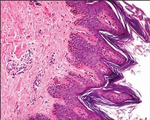 Acanthosis Nigricans Histology Related Keywords ...
