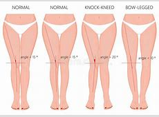 Shapes Of The LegsNormal And Curved LegsKnock Knees