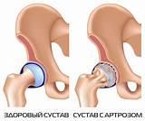 Лекарство от артроза сша