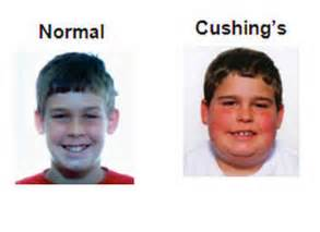 Moon Face Cushing's Syndrome
