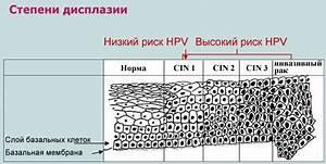 Гомеопатический препарат от вируса папилломы человека